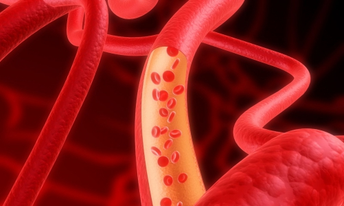 Способы лечения варикоза нижних конечностей