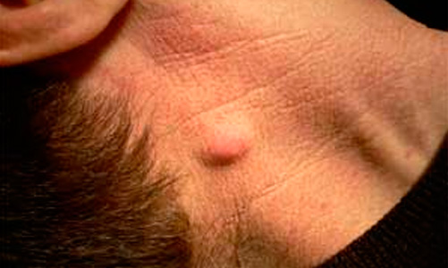 Воспаление сальных желез на голове