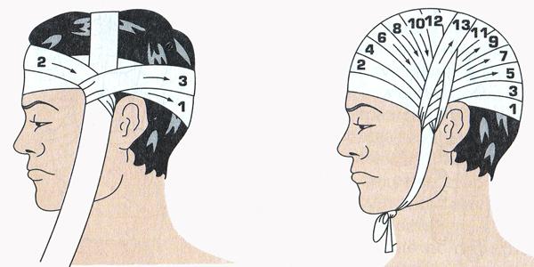 Как сделать перевязку на голове